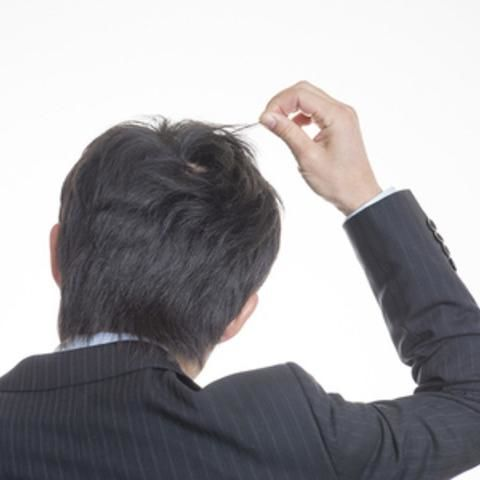 自分で自分の髪の毛を抜く「抜毛症」は、心の問題が絡んだ病気 - NAVER まとめ