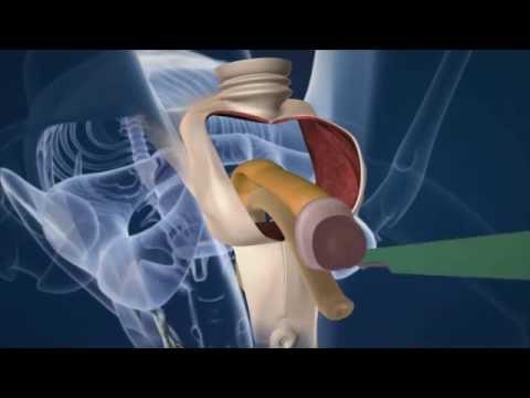 バイン - 面白 - 男性から女性への手術 - YouTube