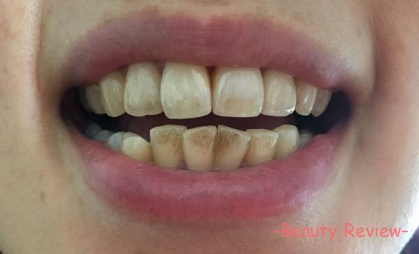 歯が黒ずんでる人