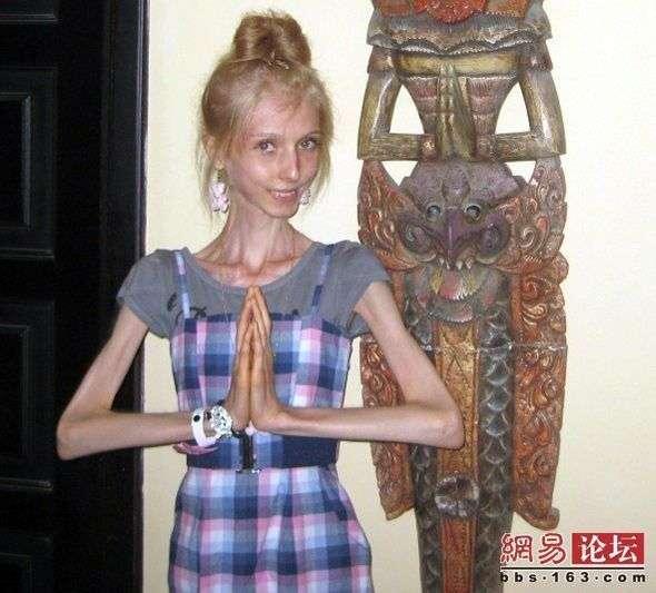 ▼唸声の気になる写真/ロシア:20kgダイエットに成功したロシアの20歳の女性! - 唸声のブログ