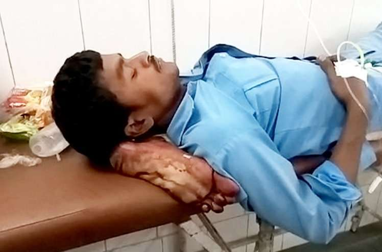 【超閲覧注意】交通事故で脚が切断された患者 病院で切断された脚が枕代わりに使われて衝撃 病院は責任逃れ