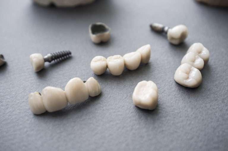 セラミックの歯について教えてほしい