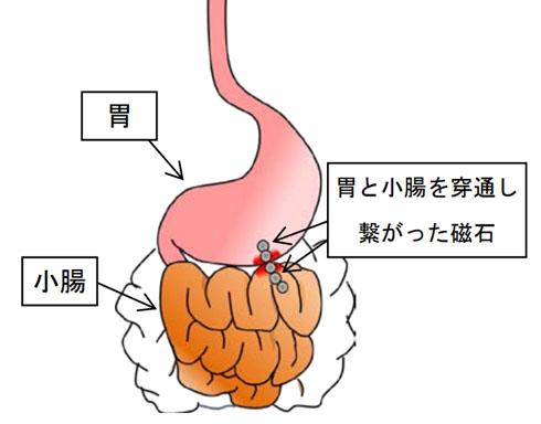 マグネットボールの誤飲で幼児の内臓に穴があく事故