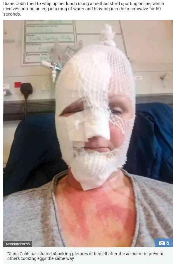 【海外発!Breaking News】電子レンジで調理したポーチドエッグが爆発 顔に重度の火傷を負った女性(英) | Techinsight(テックインサイト)|海外セレブ、国内エンタメのオンリーワンをお届けするニュースサイト