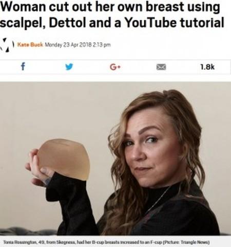 豊胸インプラントを自分で取り出した女性 カッターナイフと消毒液で(英)