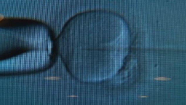 CNN.co.jp : 医師が自分の精子で患者の不妊治療、生まれた子どもらが提訴