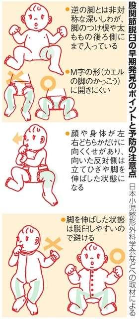 赤ちゃんの股関節脱臼、見逃し注意 コアラ抱っこ推奨も