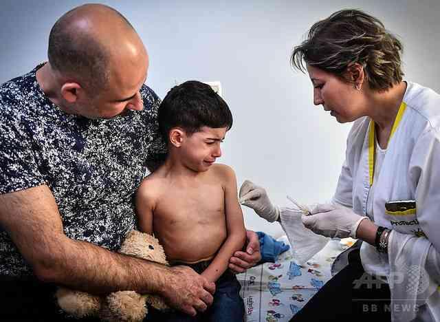 ルーマニアで多数の子どもがはしかで死亡 ワクチンへの親の不信感が起因 - ライブドアニュース