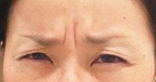 眉間のシワを取る方法