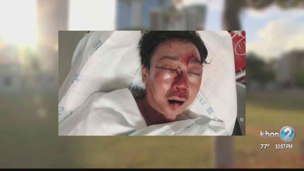 Arrest made after brutal beating of two Japanese tourists in Kakaako makes news headlines in Japan - KHON