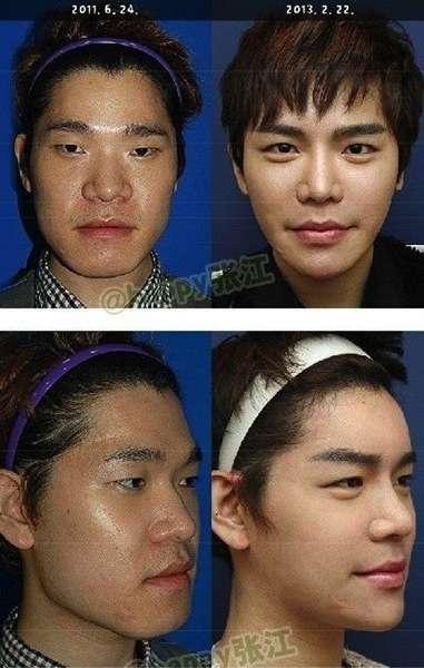 軍病院で整形手術を受ける韓国の兵士「練習の対象では」と指摘も
