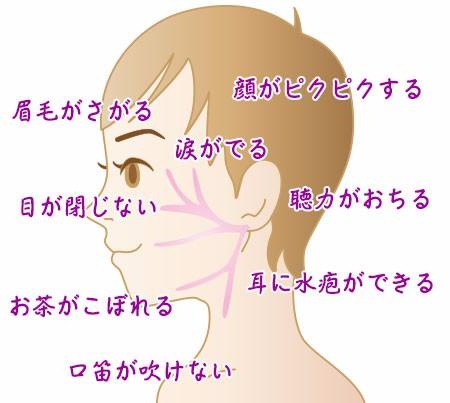 顔面神経麻痺になったことある方