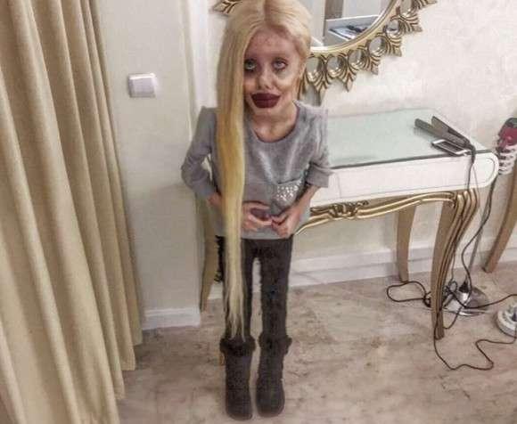 アンジェリーナ・ジョリーそっくりになりたくて、50回もの整形手術を繰り返したと噂されるイラン人女性、その真相は?