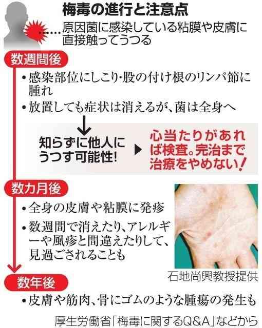 梅毒患者、増加の一途 若い女性の感染が増加(朝日新聞デジタル) - Yahoo!ニュース