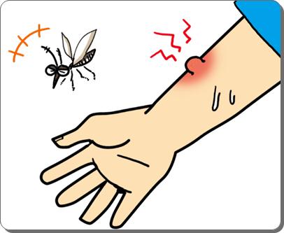 蚊に刺されまくってる人
