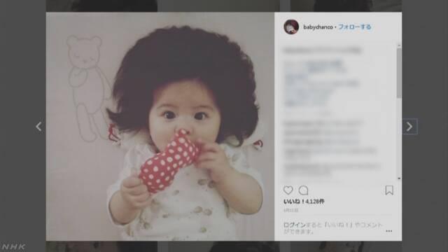「爆毛」赤ちゃん 世界中で話題に | NHKニュース