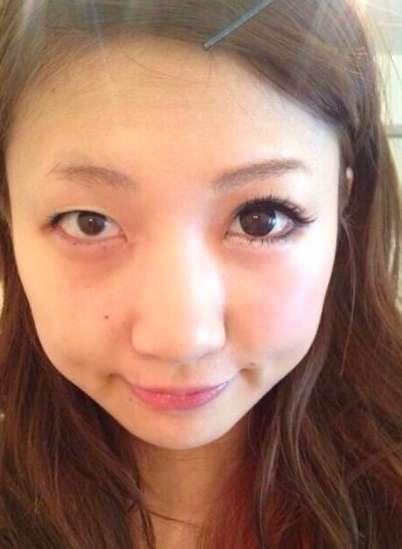 左右の目のバランスが悪い