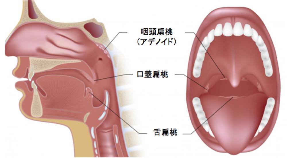 扁桃腺 手術後