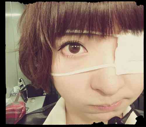 AKB48篠田麻里子「朝起きて眼球が2倍に…!」眼帯姿にファンから心配の声
