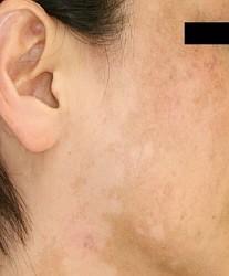 「肌にまだら症状」の訴え2250人に カネボウ化粧品