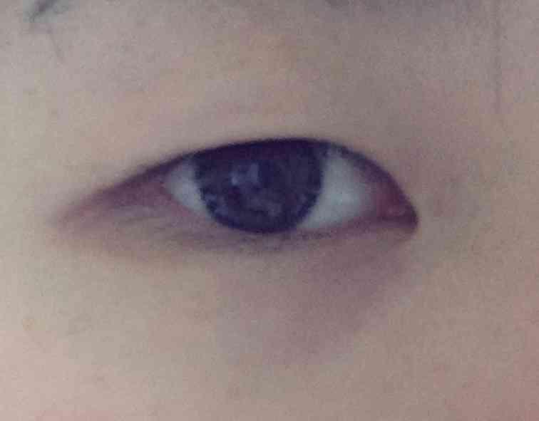 瞼が分厚い方~