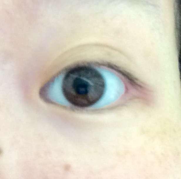 目の色素薄い人
