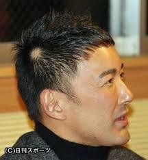円形脱毛症になった事ある方〜!