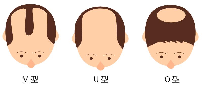 彼氏、旦那が禿げてきた人!