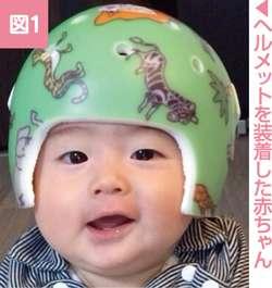 赤ちゃんの頭の形、向き癖対策