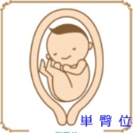 妊娠中逆子の人、逆子だった人〜!