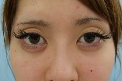 あなたの目は何重ですか??