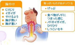逆流性食道炎で悩んでる人