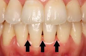 歯列矯正に失敗した人いませんか?