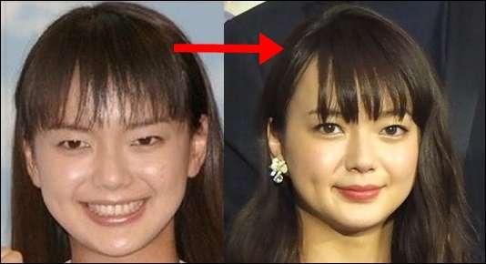 アイドルの整形は「売り出す前に」加藤浩次が関係者からの情報吐露