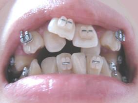 生まれつき歯並びがいい人