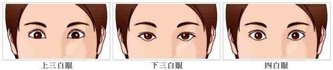 三白眼・四白眼 | 形成外科・美容外科 | 四谷見附クリニック