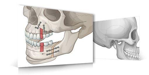 【悲報】両顎手術(あご整形)を受けた女性が死亡…