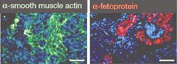 小保方晴子博士、STAP細胞研究の核心部分に転用の可能性…別研究の博士論文画像と酷似