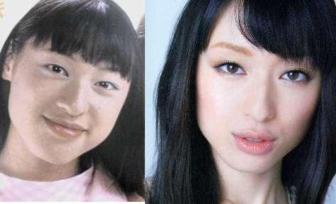 エラ 栗山 千明 遺留捜査の栗山千明はエラがとれて顔が変わった?今と昔の画像比較!