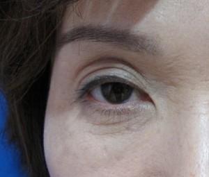 一重瞼の良い点・悪い点