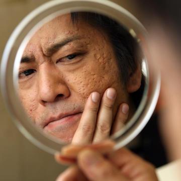 肌が綺麗な芸能人の画像を貼るトピ