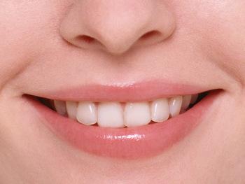 歯のホワイトニングしたことのある人ー!