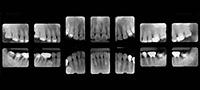 自費検査|うえたに歯科クリニック