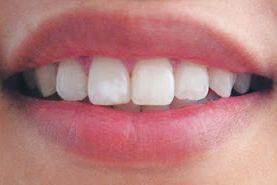 貼って歯を白くするホワイトニングテープ「クレスト 3D ホワイトストリップス」 – 綺麗になりたい!