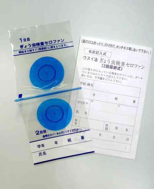 ぎょう虫検査、九州の一部は継続 国は義務づけ廃止へ:朝日新聞デジタル