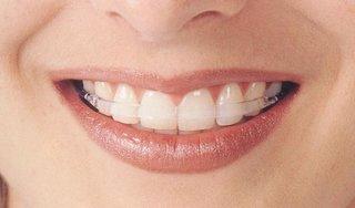歯列矯正、終了者集まってね!
