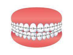 ガタガタ歯並びを治すメリットとは? 歯を8本抜いている筆者がおくる歯列矯正体験記
