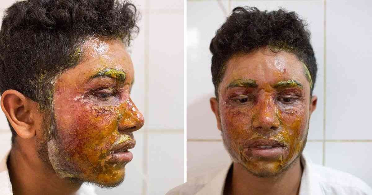 Girl threw acid at boy's face because he turned her down | Metro News