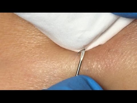 Ingrown Hairs Extraction - 16 minutes - YouTube