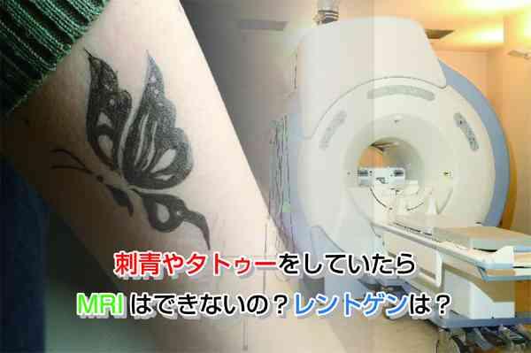 刺青やタトゥーをしていたらMRIはできないの?レントゲンは? | 医師が教える人間ドックの評判とホントのところ